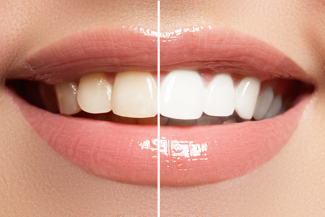 spectrophotometer tooth whitening